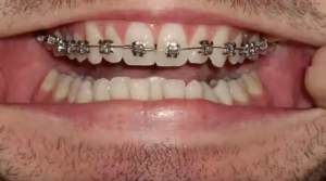 traitional metal braces in san Antonio orthodontics