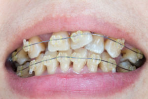 patient with braces for misaligned tooth