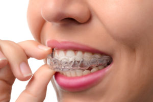 cost of Invisalign braces san Antonio