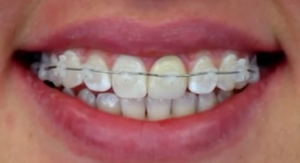 san antonio orthodontist braces